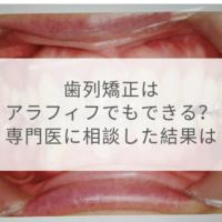 40代からの歯列矯正#2:何歳まで可能?専門医に相談した結果は!