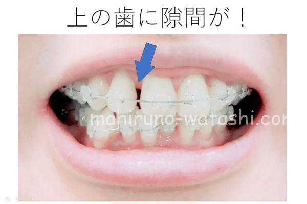 歯列矯正_上の歯に隙間